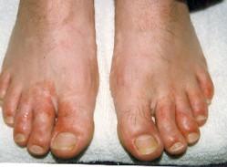 schimmel voeten